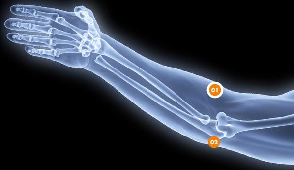 Douleurs au coude - Rive Sud - OrthoAction