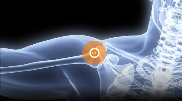 Douleurs à l'épaule - Rive Sud - OrthoAction
