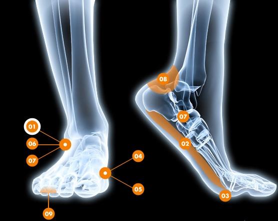Douleurs au pied/ à la cheville - Rive Sud - Orthoaction