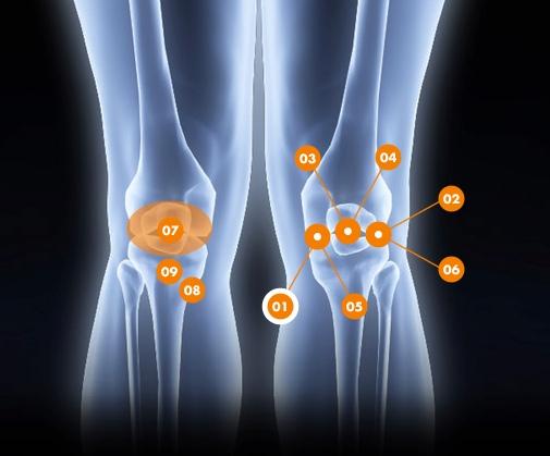 Douleurs au genou - Rive Sud - OrthoAction