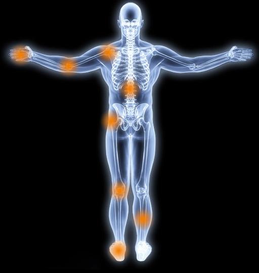 Identifiez votre douleur - Rive Sud - OrthoAction