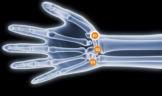 Douleurs à la main - Rive Sud - OrthoAction